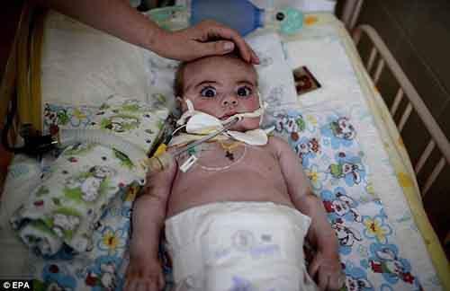 Больной церебральным параличом 8-месячный Евгений лежит в кроватке в детской больнице, пострадавшей в результате артобстрела во время боя между украинскими войсками и пророссийскими силами в Славянске