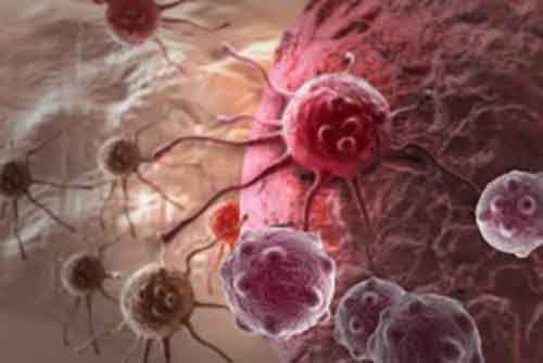 Из-за чего развивается рак и как этого избежать
