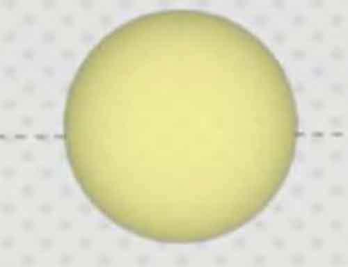 Тёмно-жёлтый цвет мочи