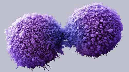 pancreatic cancer cell