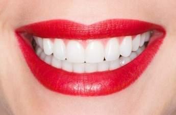 Основы голливудской улыбки: здоровые десны и красивые зубы