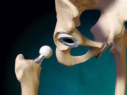 Эндопротезирование – эффективное лечение суставов