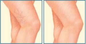 Пенная склеротерапия в лечении варикозной болезни