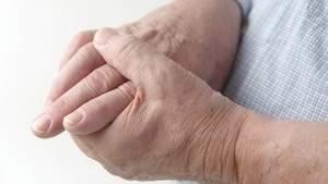 Полезно при ревматизме и артрите