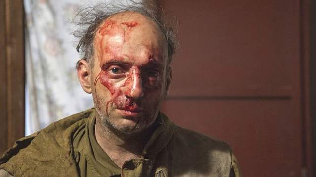 Подпись к изображению: Активисту «Greenpeace» Михаилу Крейндлину во время нападения сломали нос
