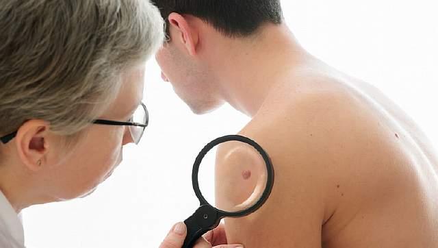 skin-cancer-sun